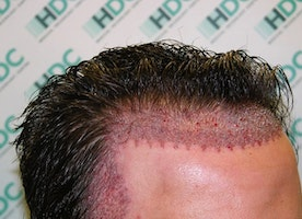 How can the right hair transplant technique guard against baldness?