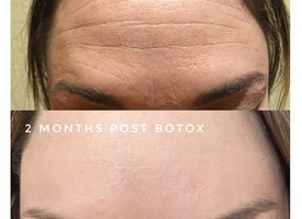 Safety Tips for Cosmetic Botox Injections