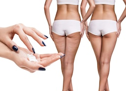 Cellulite Creams: Are They Effective to Eliminate Cellulite?