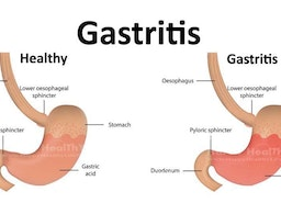 Most effective home remedies to treat gastritis
