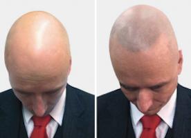 Hair Follicle Simulation Treatments | Borciani London
