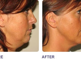 Skin Tightening Midland - Body Focus Spa