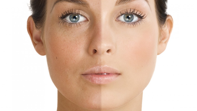Skin Pigmentation or Melasma– Things You Should Know