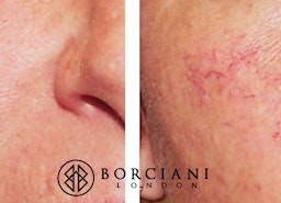 Thread veins removal treatment at Borciani London
