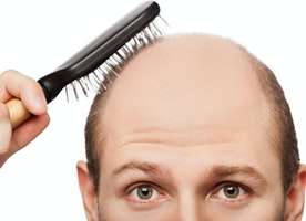 How quickly to overcome the Excessive hair loss naturally