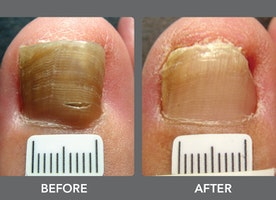 How to prevent & treat nail fungus