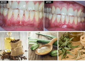 Regrow Receding Gum Line Treatment Naturally