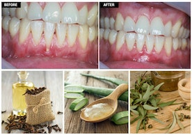 Regrow Receding Gum Line Treatment Naturally