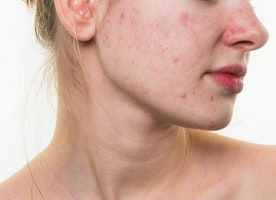How Effective is Acne Scar Treatment?