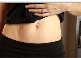 4 Reasons Why Stretch Marks Are Sexy #mombod