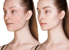 Different acne scar treatments