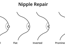 Correction Of Inverted Nipples : What To Do About Inverted Nipples