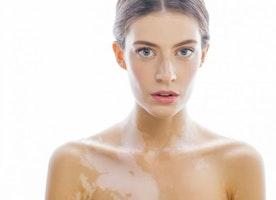 10 best vitiligo treatment in Mumbai
