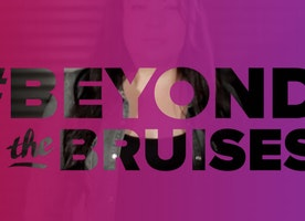 Beyond The Bruises and Onto Healing