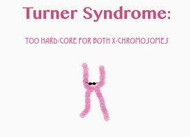 I will talk about Turner Syndrome as loud as possible