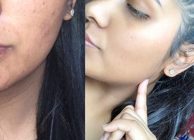 Girls, still have adult acne? Try this: Birth Control + Spironolactone