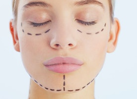 Tips on Getting the Best Facial Plastic Surgery