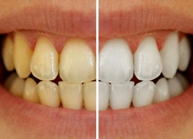 Forget About Yellow Teeth with These Tips