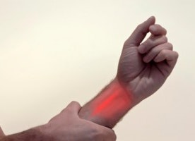 Carpal tunnel syndrome and migraine headaches, study shows association between the two