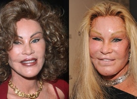 THE WORST FAILURES OF COSMETIC SURGERY IN 10 BEFORE / AFTER PHOTOS