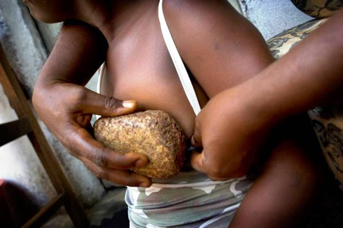 Breast Ironing: Protection or Mutilation?
