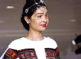 This Acid Attack Survivor Just Owned #NYFW