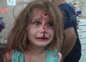 Another Heartbreaking Image of Wounded Syrian Child Goes Viral
