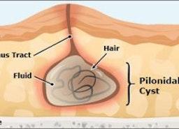 Possible reasons of Pilonidal Sinus - SIICP