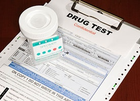 Urine Test For Marijuana: How Does It Work?
