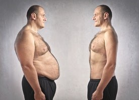 Tips To Choose the Best Bariatric Surgeon for Successful Weight Loss
