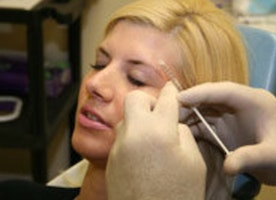 Advanced Techniques in Laser Hair Removal at Aesthetic Center in Dallas - Tackk