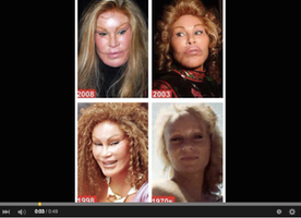 Face Surgery Gone wrong, Terrific