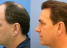 Which is the most updated method for hair transplant?