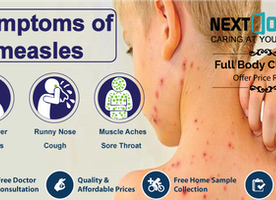 Measles: Causes, Symptoms, Treatment And Prevention