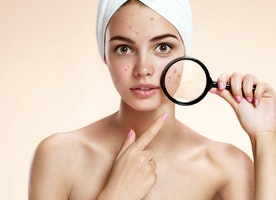 Why is it Compulsory to Get Down to the Root Cause of Acne?