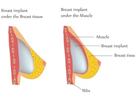 What You Should Know Before Breast Augmentation Surgery - Ehealth Spider