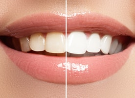 Cosmetic Dentistry-Key to Look Good and Enhance Confidence