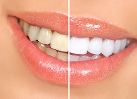 Come Sbiancare I Denti Velocemente