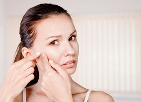 10 Easy Ways to Get Rid of a Pimple Fast