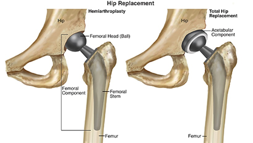 Facts Of Hip Osteoarthritis that You Need To Know