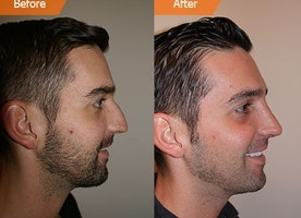 Rhinoplasty Cost - Tips to Work out For the very best Nose job Cost