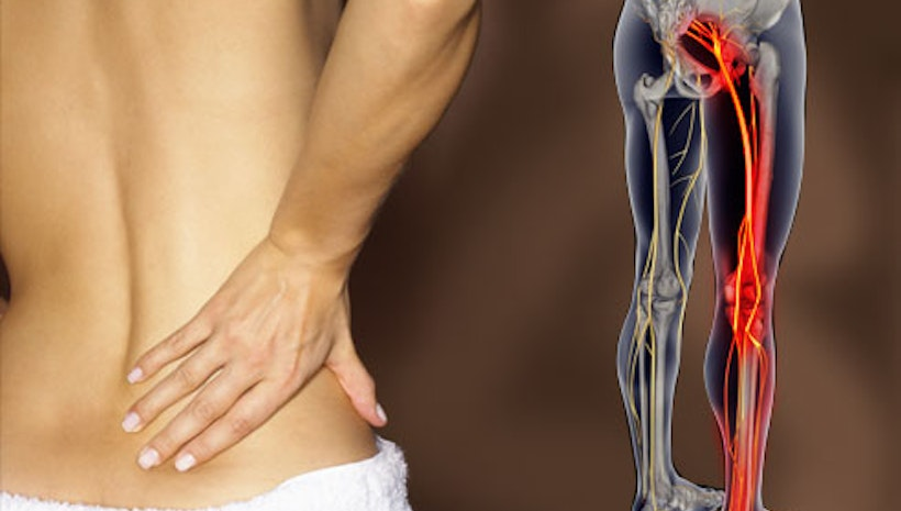 5 Effective Lifestyle ChangesToGet Rid of Sciatica