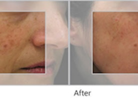 Pigmented Lesions Midland:  Laser Treatment of Pigmented Lesions