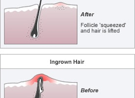 Pseudo-folliculitis Midland: What is Pseudo-folliculitis?