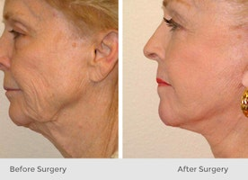 All You Need To Know About Neck Lift Cosmetic Surgery