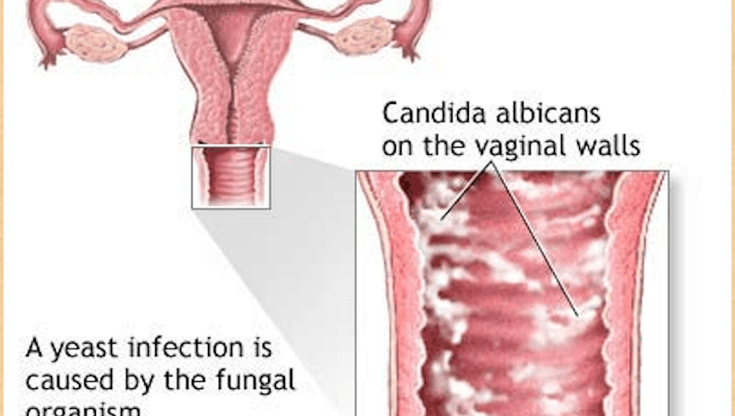 Getting Rid of Candida: What are the Best Methods?