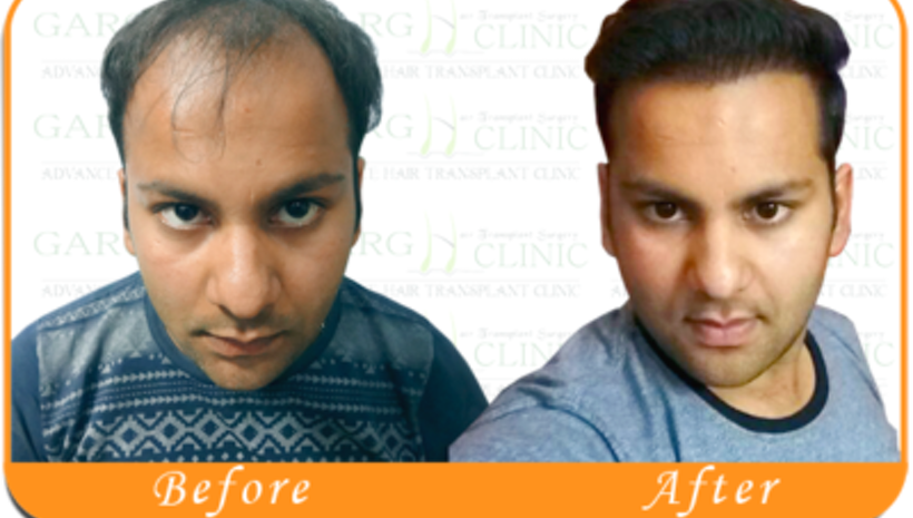 Top 5 prime reasons to pick up the best Fue hair transplant device