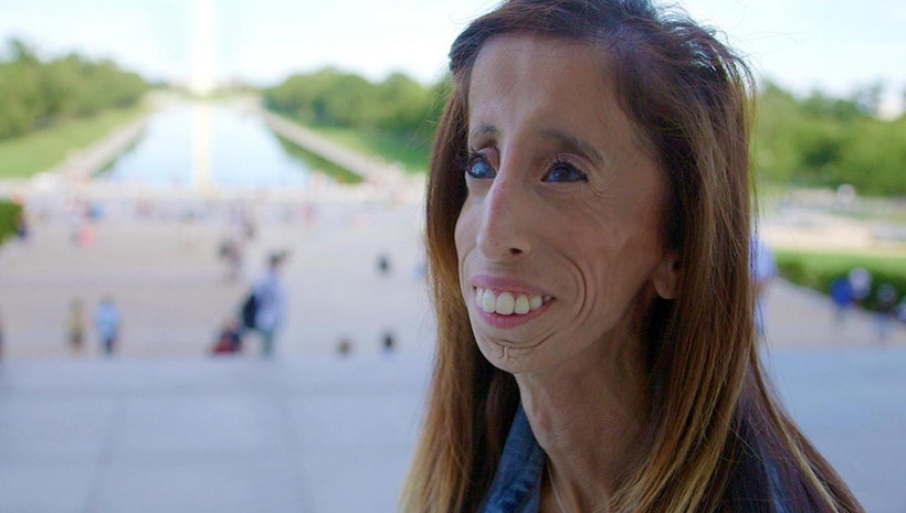 Moguls of the World: Lizzie Velásquez, the World's Most Beautiful Woman & Her Inspirational Journey from Cyber-Bully Victim to Anti-Bullying ACTIVIST