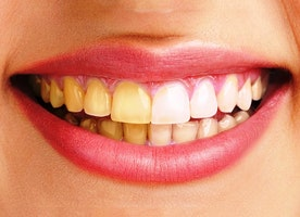 Natural ways to whiten yellow between the Teeth?