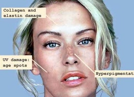 How to Help Reverse The Effects of Sun Damage